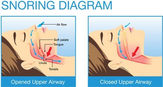 how wedge pillow help with snoring guide
